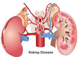 Signs Of Kidney Disease